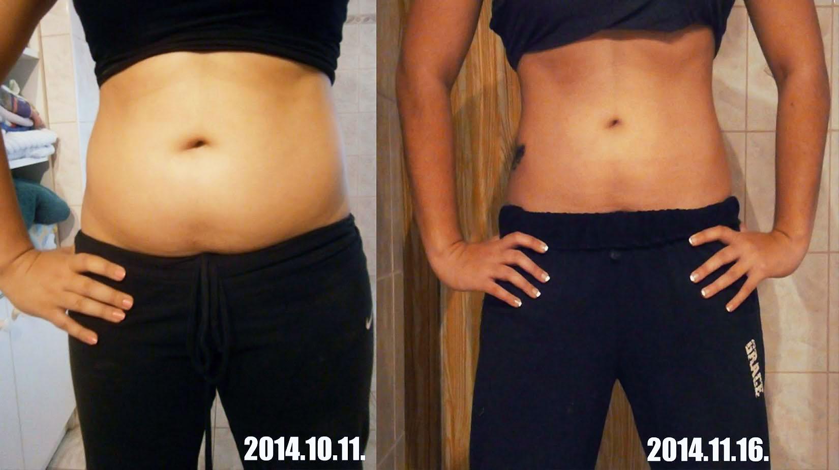 anorexia súlycsökkenés százaléka