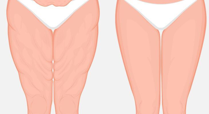 hogyan lehet eltávolítani a zsírt a belső combon