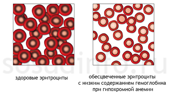 az alacsony hemoglobin súlycsökkenést okozhat