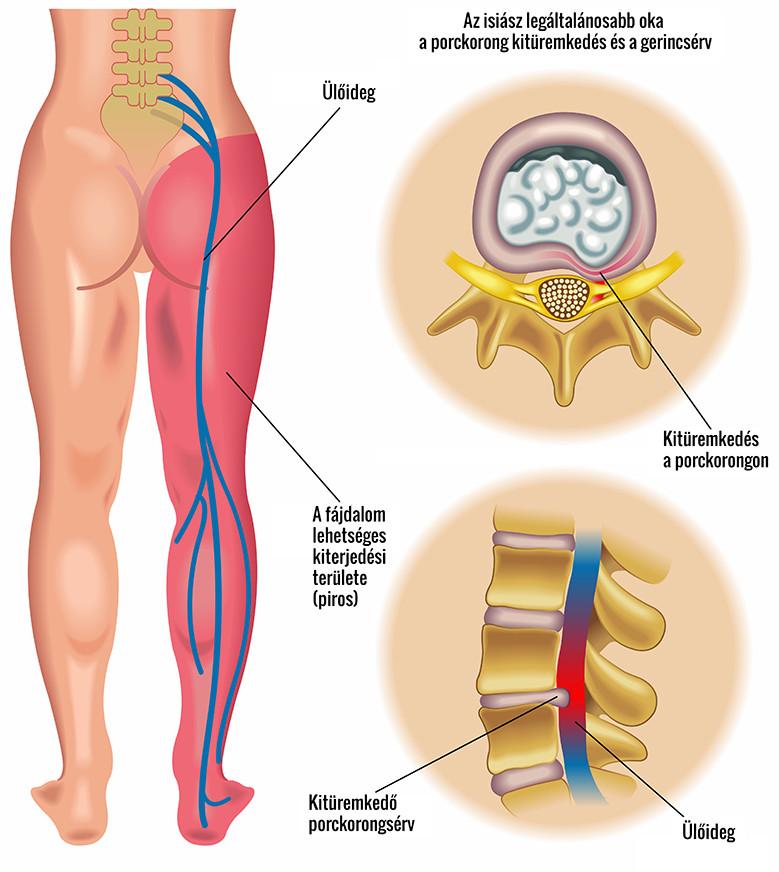 hogyan lehet elveszíteni az alsó mellkas zsírját