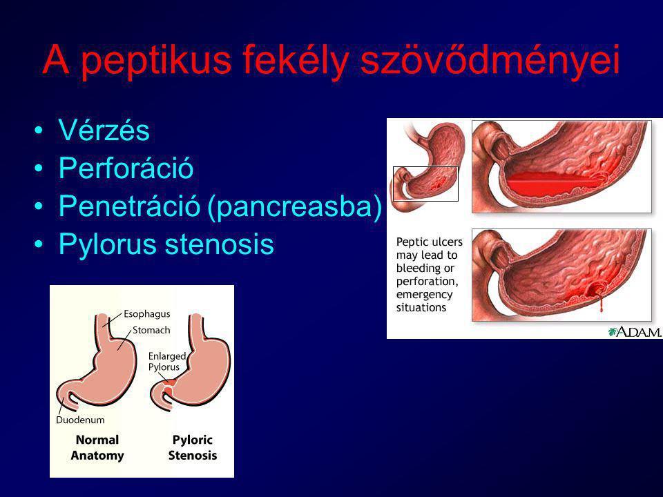 peptikus fekélybetegség és fogyás