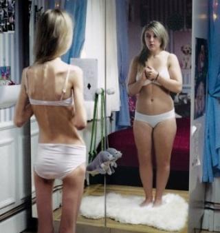 Beszélgetések az anorexiáról   Futásról Nőknek