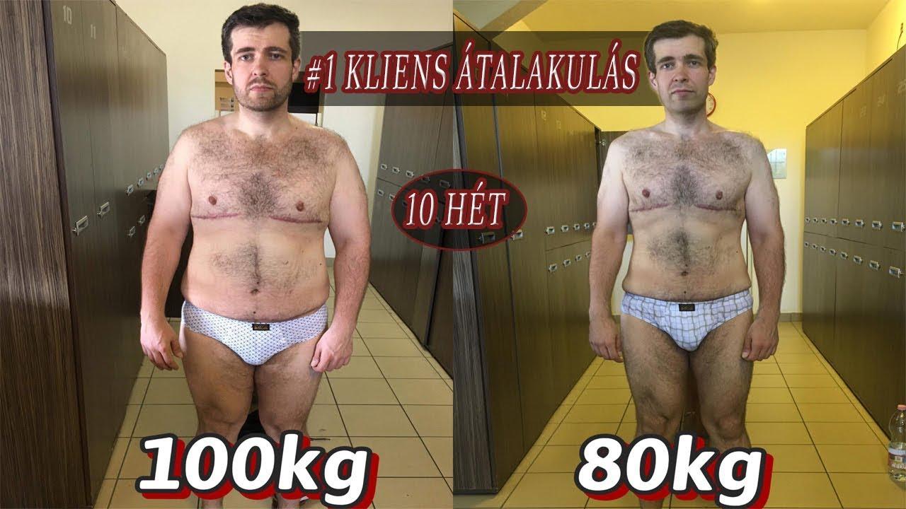 anorexia fogyás sikertörténetek