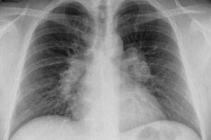 A tüdőtuberkulózis tünetei, jelei, stádiumai és formái felnőtteknél - Orrmelléküreg gyulladás