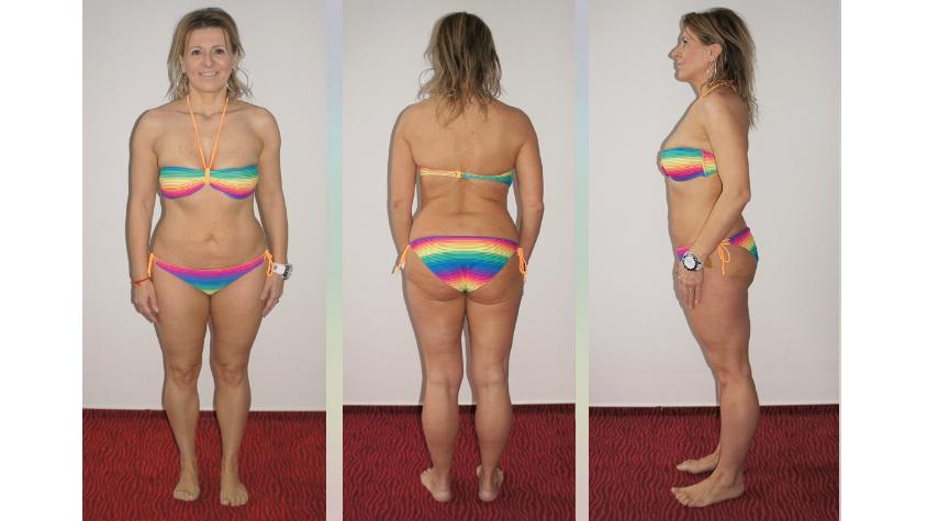 Judit kipróbálta ezt a módszert, és 4 hónap alatt 44 kilót fogyott