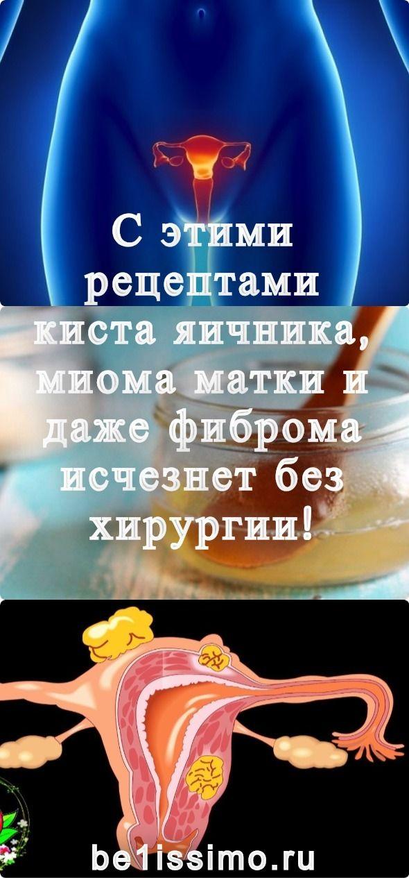 fogyni mióma