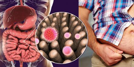 baktériumok fogyás