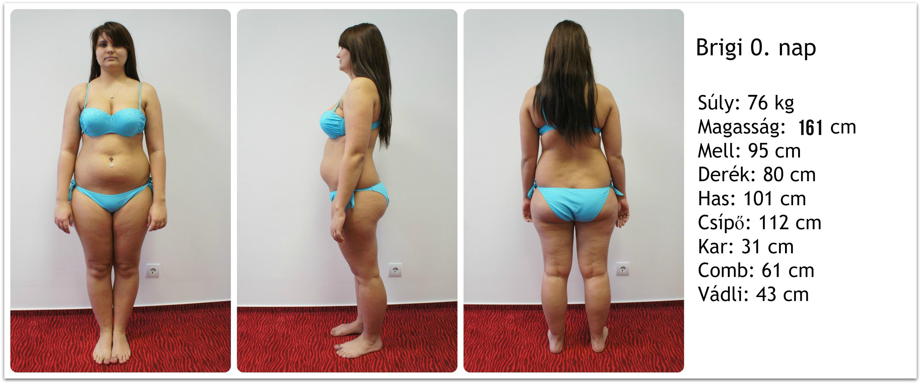 zsíréget-e az olvasás fogyás kórosan elhízott nőnél