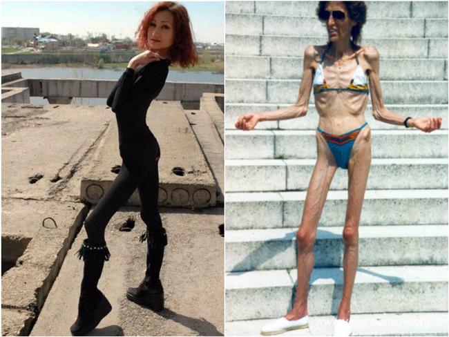 Az anorexikusoknak mennyi a testtömege a normális testsúlynak? - Anorexia Nervosa -
