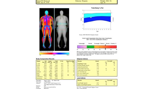 Dexa scan fogyás, Testzsírszázalék mérés módszerei: