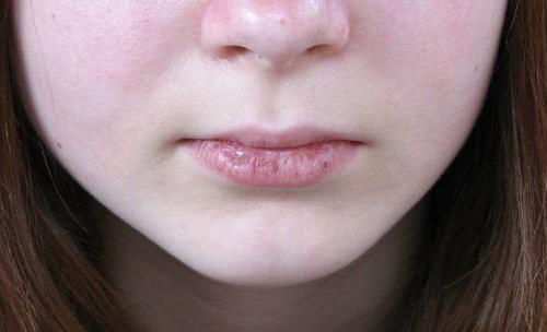Távolítsa el a zsírt a száj körül. Időskori bőrelváltozások - Okok és kezelési lehetőségek