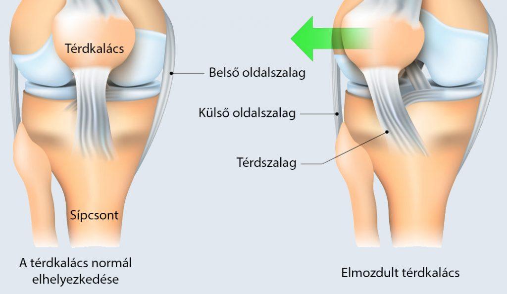 Kereszt-csípő ízület gyulladás - Sacroiliac ízületek ízületi gyulladása